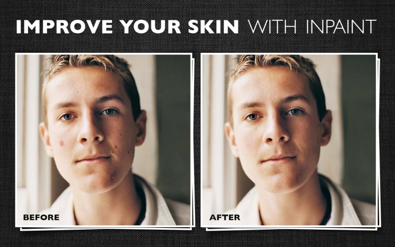 Improve your skin with Inpaint